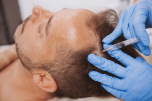 doctor performing scalp injection on male patient with hair loss